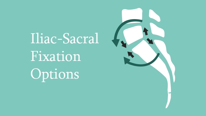 Iliac-sacral fixation options lecture thumbnails
