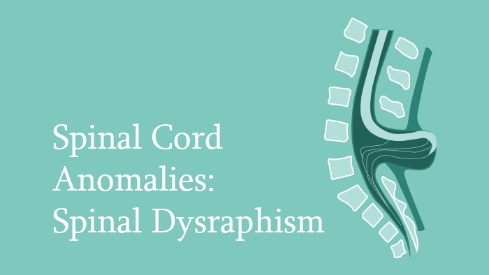 Spinal Cord Anomalies: Spinal Dysraphism Lecture Thumbnail