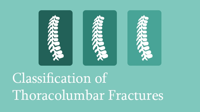 Classification of Thoracolumbar Spine Fractures - Spine Surgery Lecture - Thumbnail