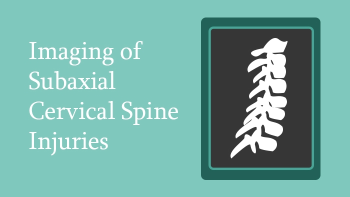 Imaging of Subaxial Cervical Spine Injuries Lecture Thumbnail