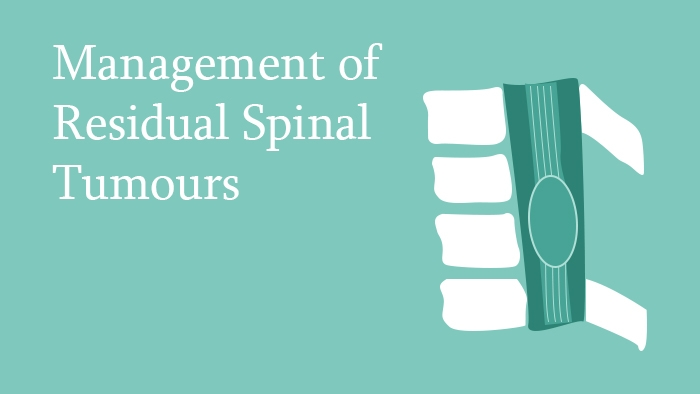 Management of Residual Spinal Tumours Lecture Thumbnail