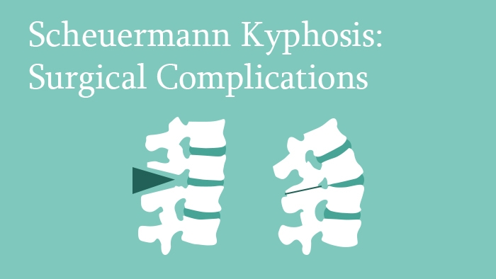 Scheuermann's Kyphosis: Surgical Complications - Spine Surgery Lecture - Thumbnail