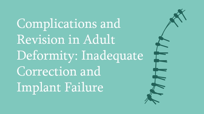 Complications and Revision in Adult Deformity: Inadequate Correction and Implant Failure Lecture Thumbnail