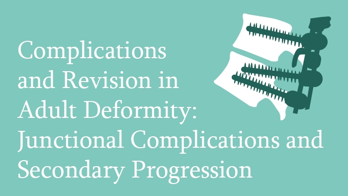 Complications and Revision in Adult Spinal Deformity: Junctional Complications and Secondary Progression Lecture Thumbnail
