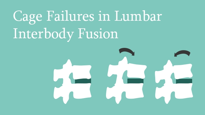 Cage Failures in Lumbar Interbody Fusion lecture thumbnail