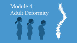 Module 4: Adult Deformity of the Spine