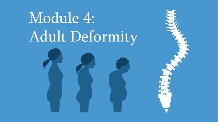 Adult Spine Deformity Module of the Spine Surgery Diploma