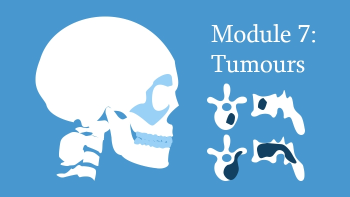 Module 7: Spinal Tumours