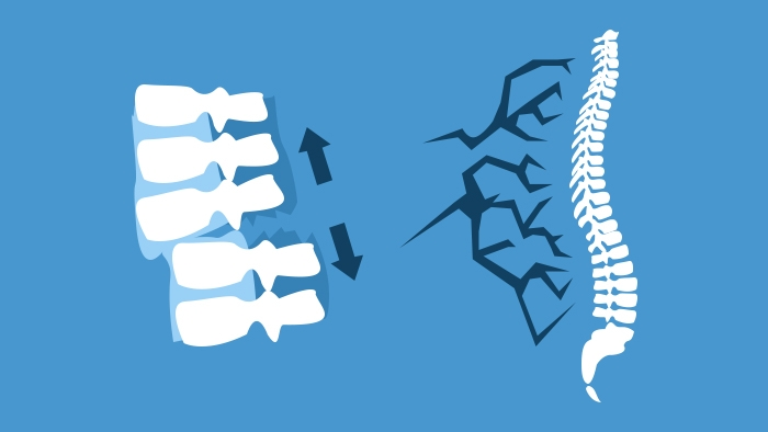 Spine Surgery Diploma cover image