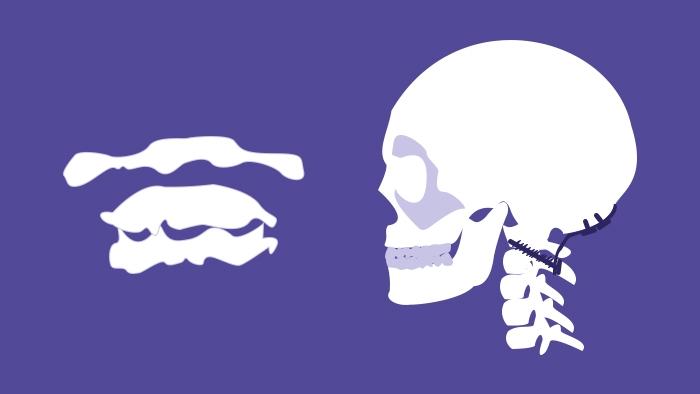 Fractures of the Upper Cervical Spine