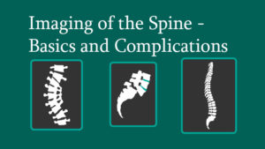 Imaging of the Spine – Basics and Complications