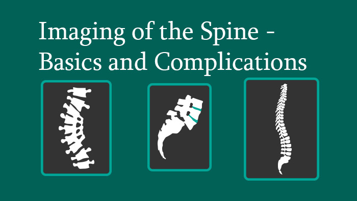 Spine Radiology: Imaging in the Spine Basics & Complications Knowledge Package