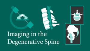 Imaging in the Degenerative Spine