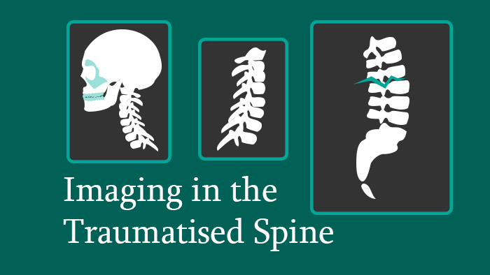 Imaging in the Traumatised Spine