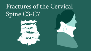 Fractures of the Cervical Spine C3-C7