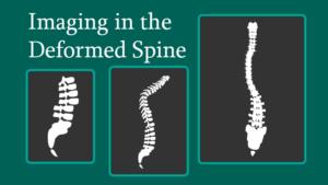 Imaging in the Deformed Spine