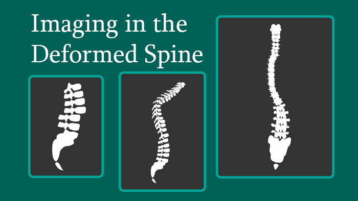 Imaging in the Deformed Spine